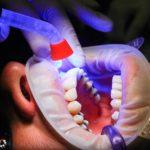 Złe podejście odżywiania się to większe niedobory w jamie ustnej natomiast dodatkowo ich brak